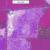 spatial-representation-map-bcg-COALA-project